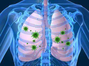 عفونت سینه